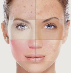 შინაგანი ორგანოების დაავადებებს სახეზე ამოიკითხავთ