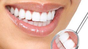 გავითეთროთ კბილები