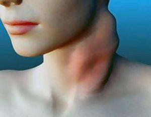ლიმფოგრანულომატოზი