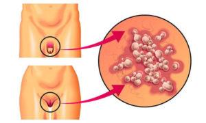 შარდსასქესო ორგანოების ჰერპესული დაავადება