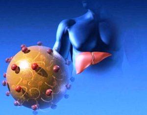 ვირუსული ჰეპატიტი A ანუ ბოტკინის დაავადება
